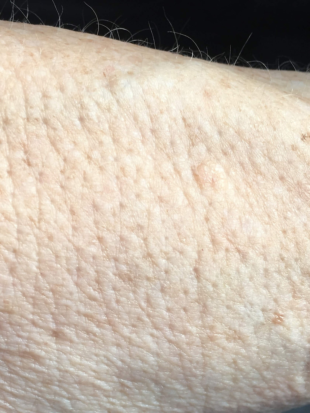 Picture of skin on arm before Crepey Skin appears