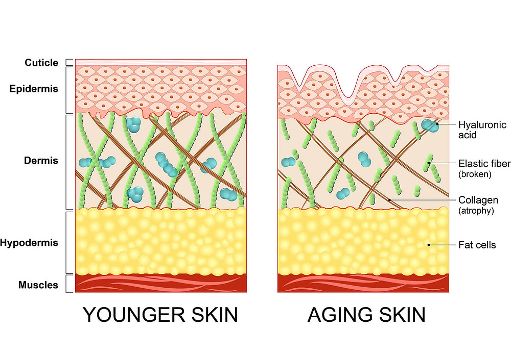 Young and Aging skin -Kellie Olver