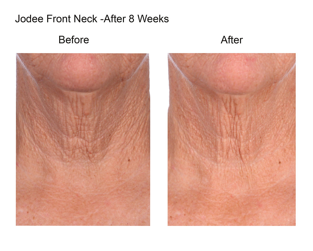 Jodee's Neck Before & After Drinking TripleK Collagen for 8 Weeks