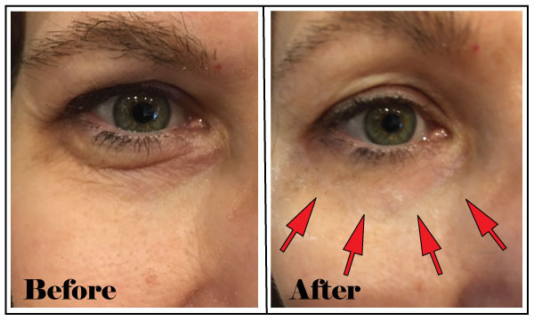 Baggy and loose skin around the eyes