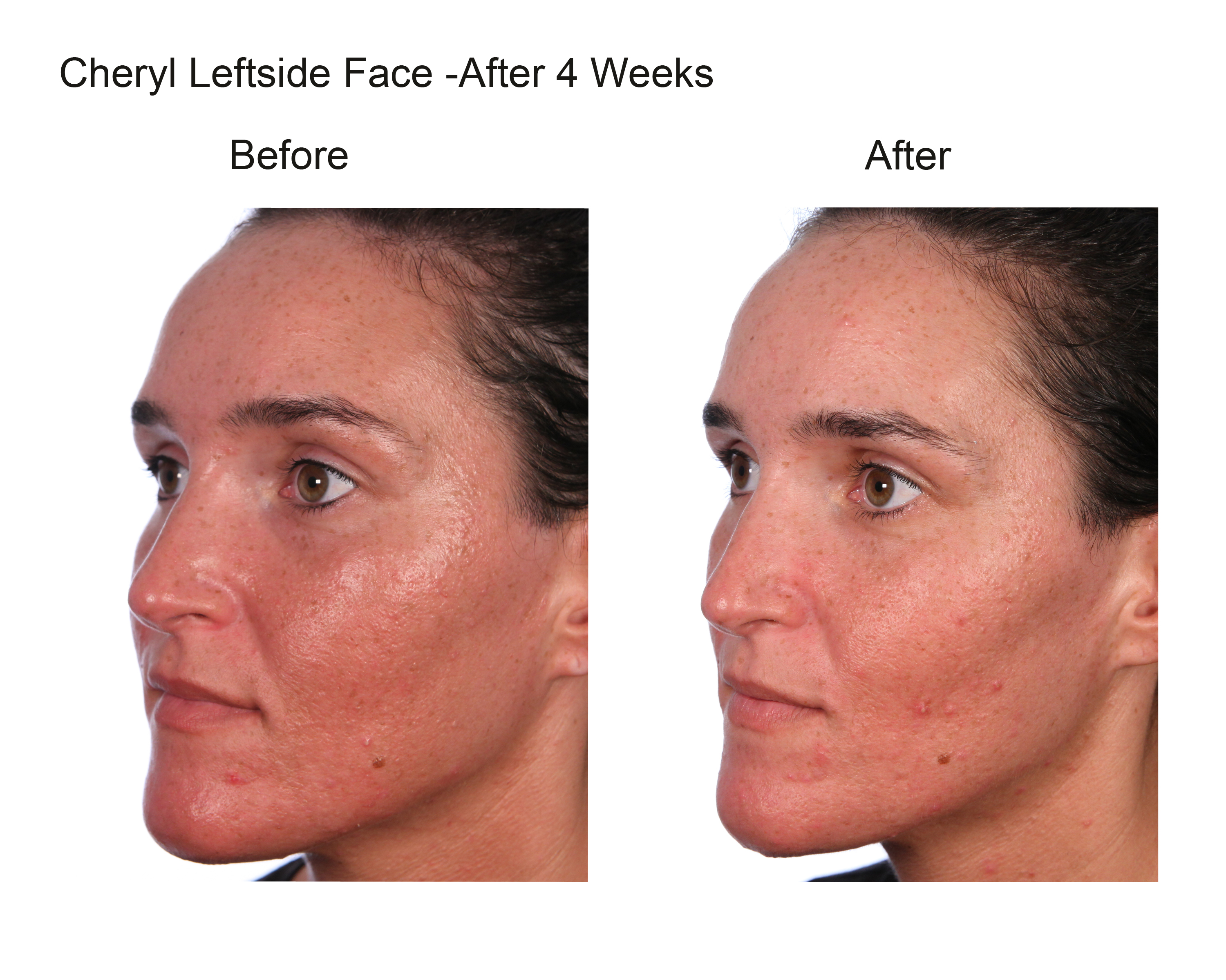 Cheryl Leftside Face After 4 Weeks