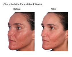 Cheryl Leftside Face After 4 Weeks