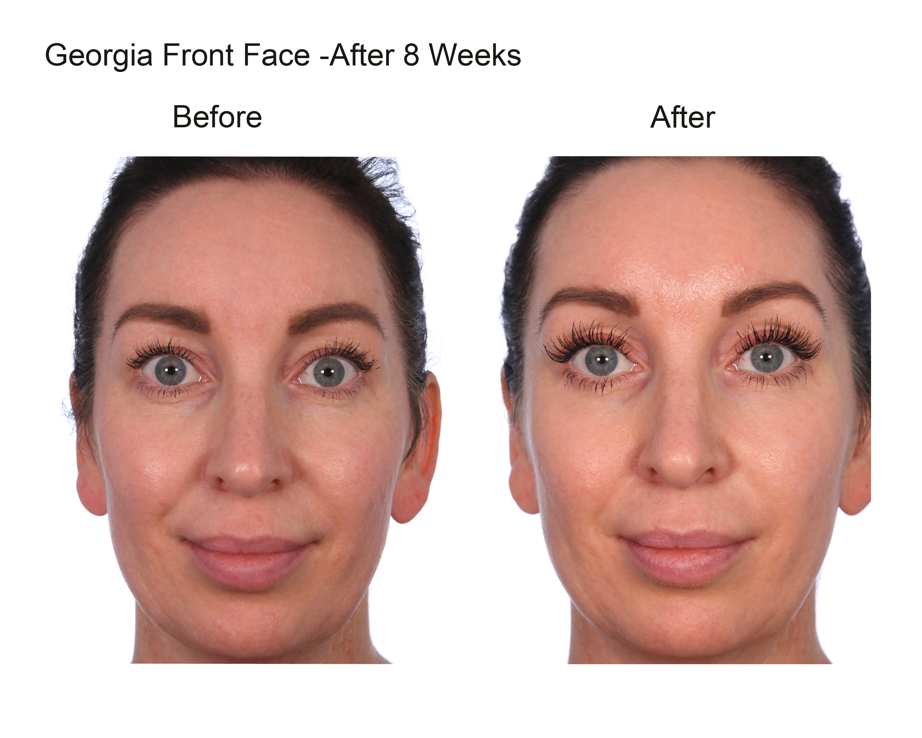 georgia front face after 8 weeks