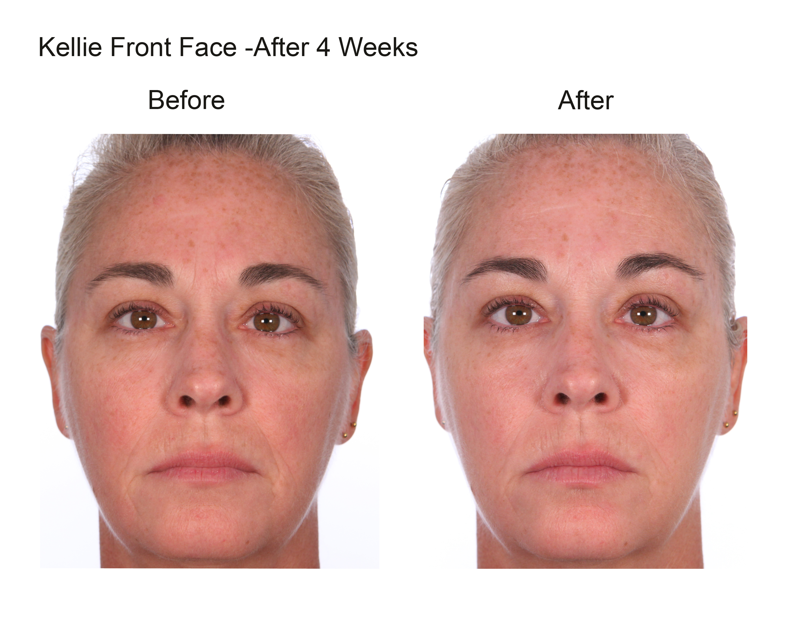 Kellie Front Face After 4 Weeks (5)