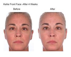 Kellie Front Face After 4 Weeks (5)