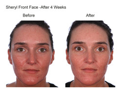 Sheryl Front Face After 4 Weeks-0
