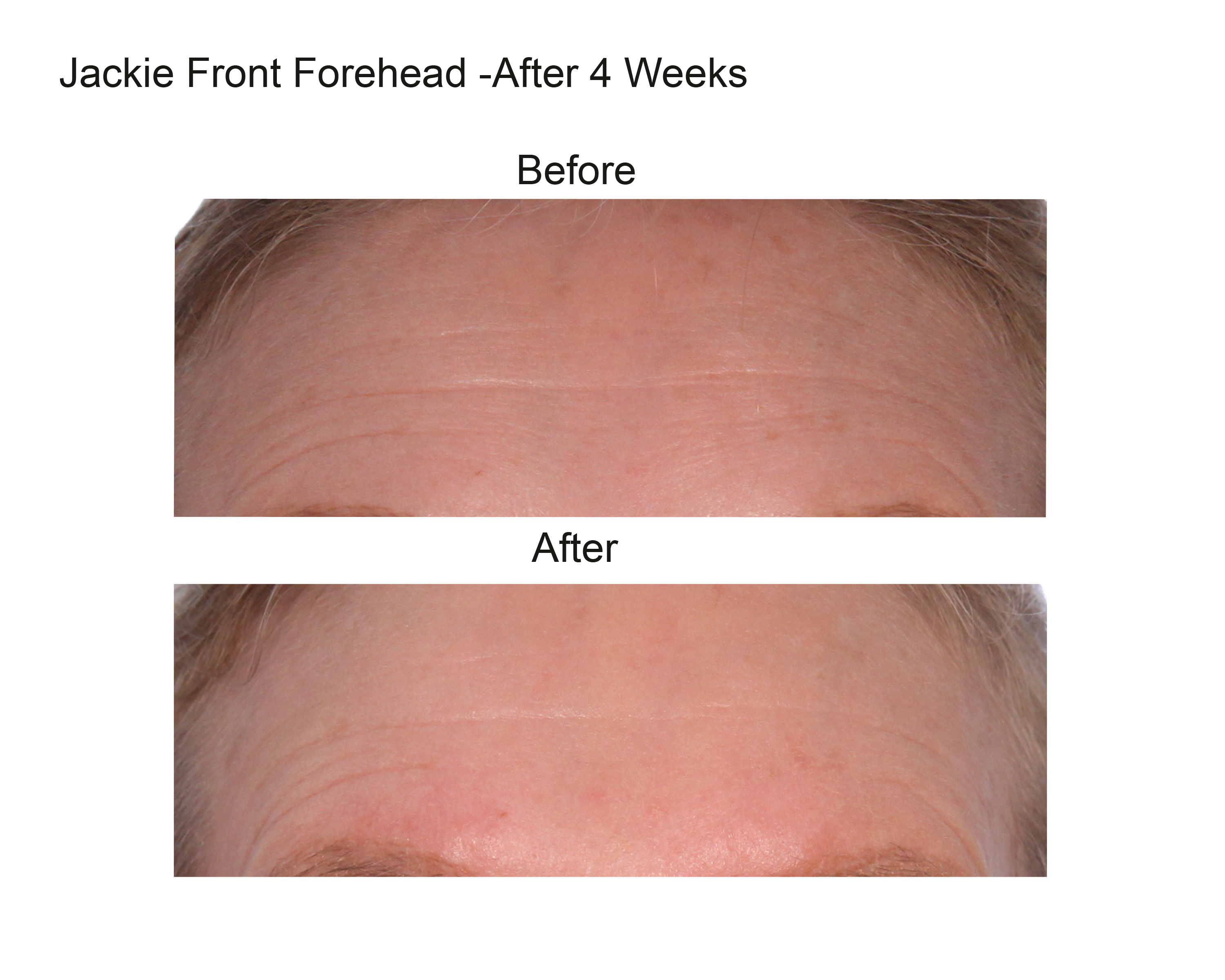 Jackie Front Forehead After 4 Weeks (1).