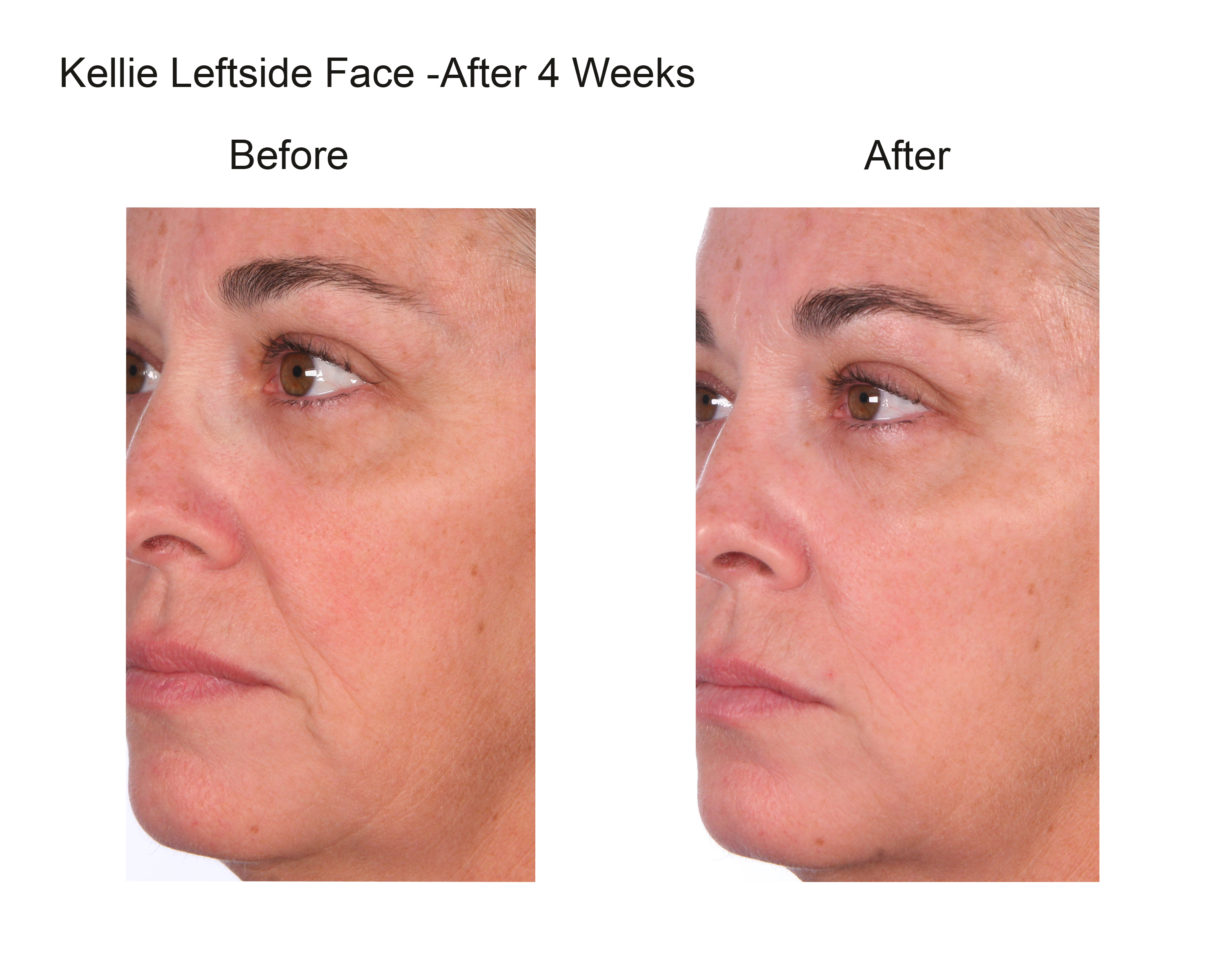 kellie leftside face crop after 4 weeks