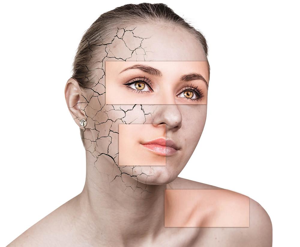 Dry Skin - Kellie Olver
