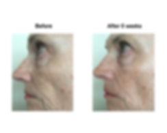 Face, left side