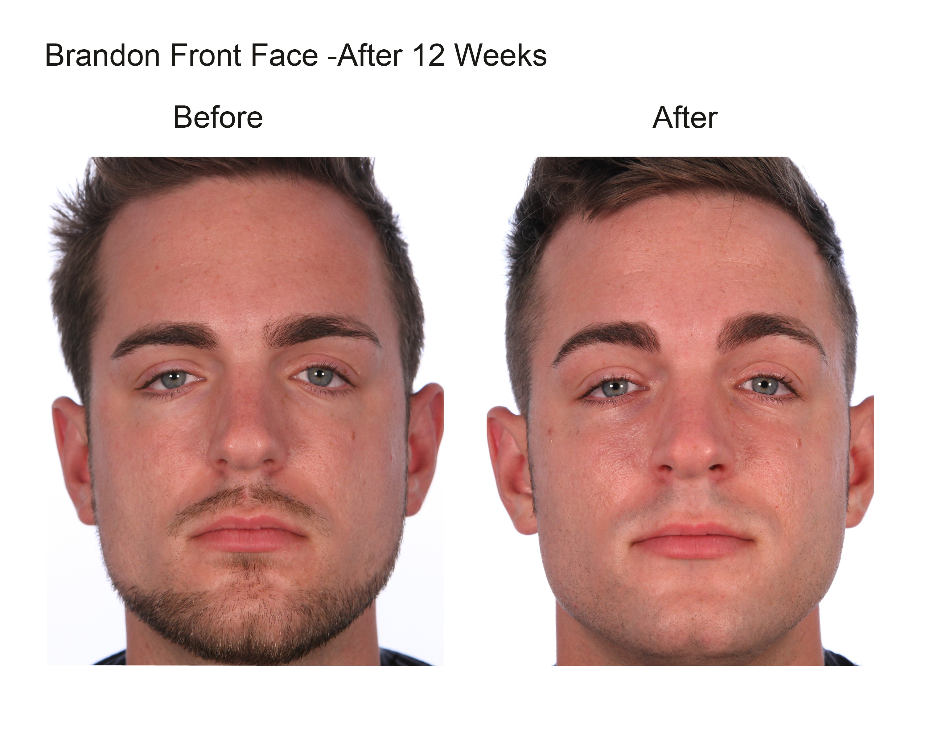 brandon front face after 12 weeks