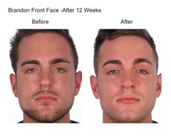 brandon front face after 12 weeks