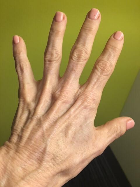 Crepey skin on hands Kellie Olver