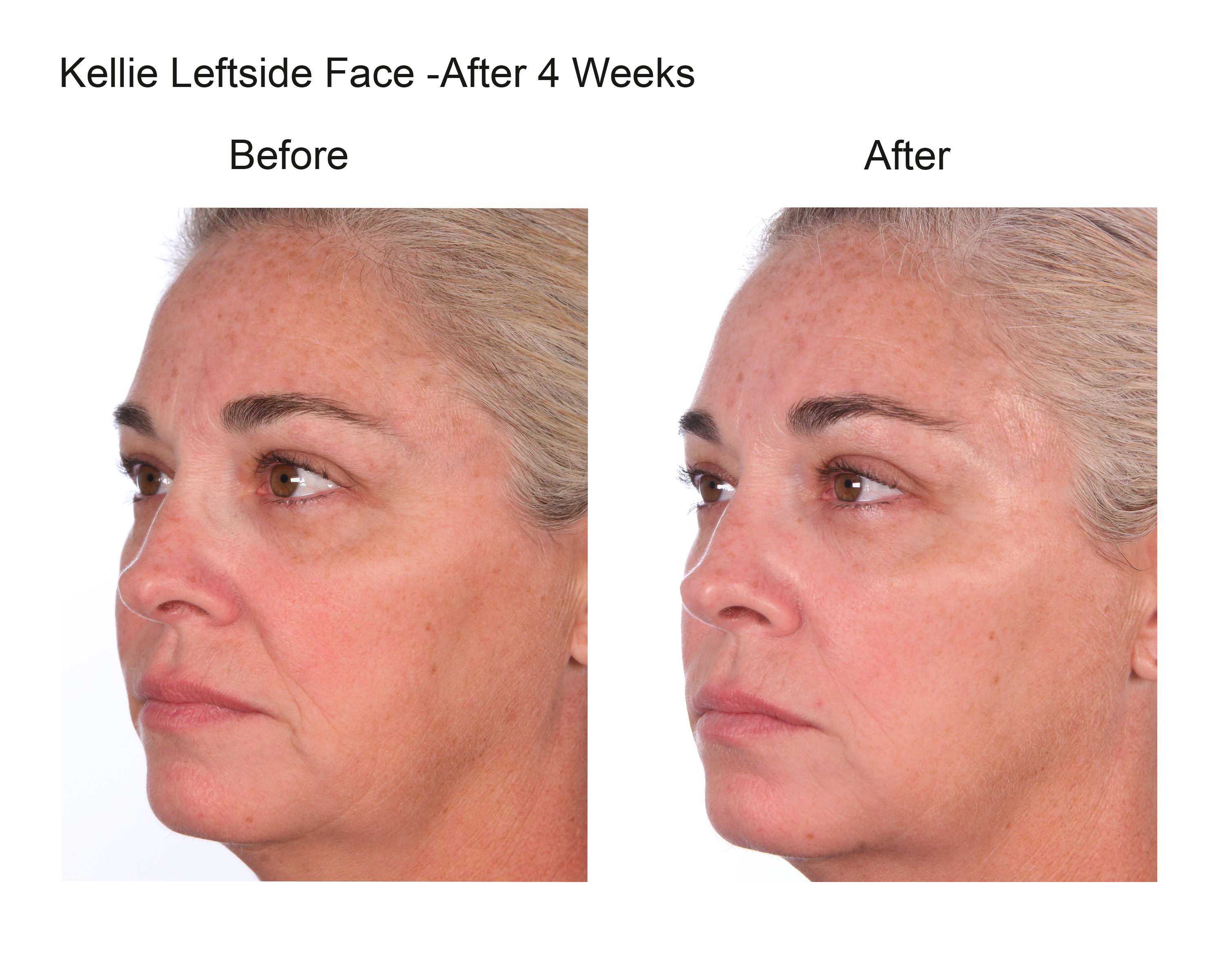 Kellie Leftside Face After 4 Weeks (3)