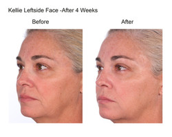 Kellie Leftside Face After 4 Weeks (3)