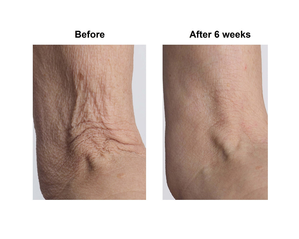 Before & After Picture of CrepeySkin On Arm