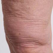 crepey skin on legs kellie olver