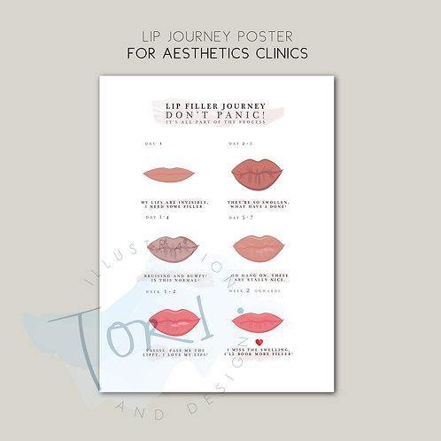 Aesthetics Poster - Lip Filler Journey