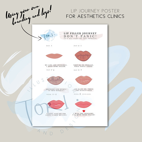 Aesthetics Printed Poster - Lip Filler Journey with your logo