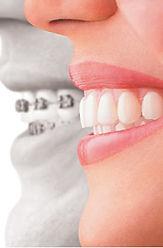 Ortodonzia e apparecchi