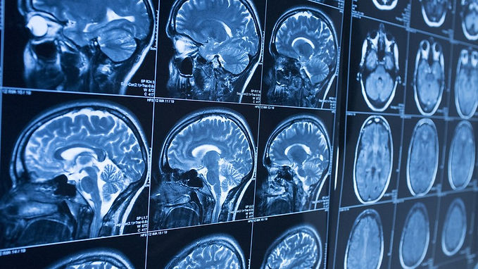 MRI Scan Service