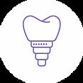 Prothèses amovible_sur implant.webp
