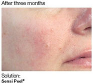 Chemical Peel 6.jpg