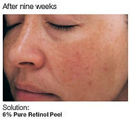 Chemical Peel 4.jpg
