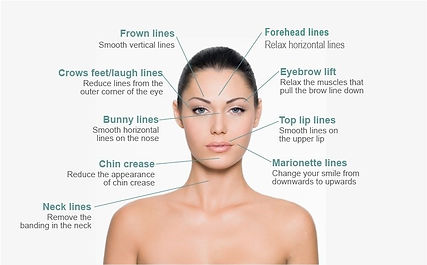 botox-injection-sites-face-diagram v4.jp