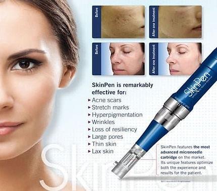 Skin pen 1.jpg