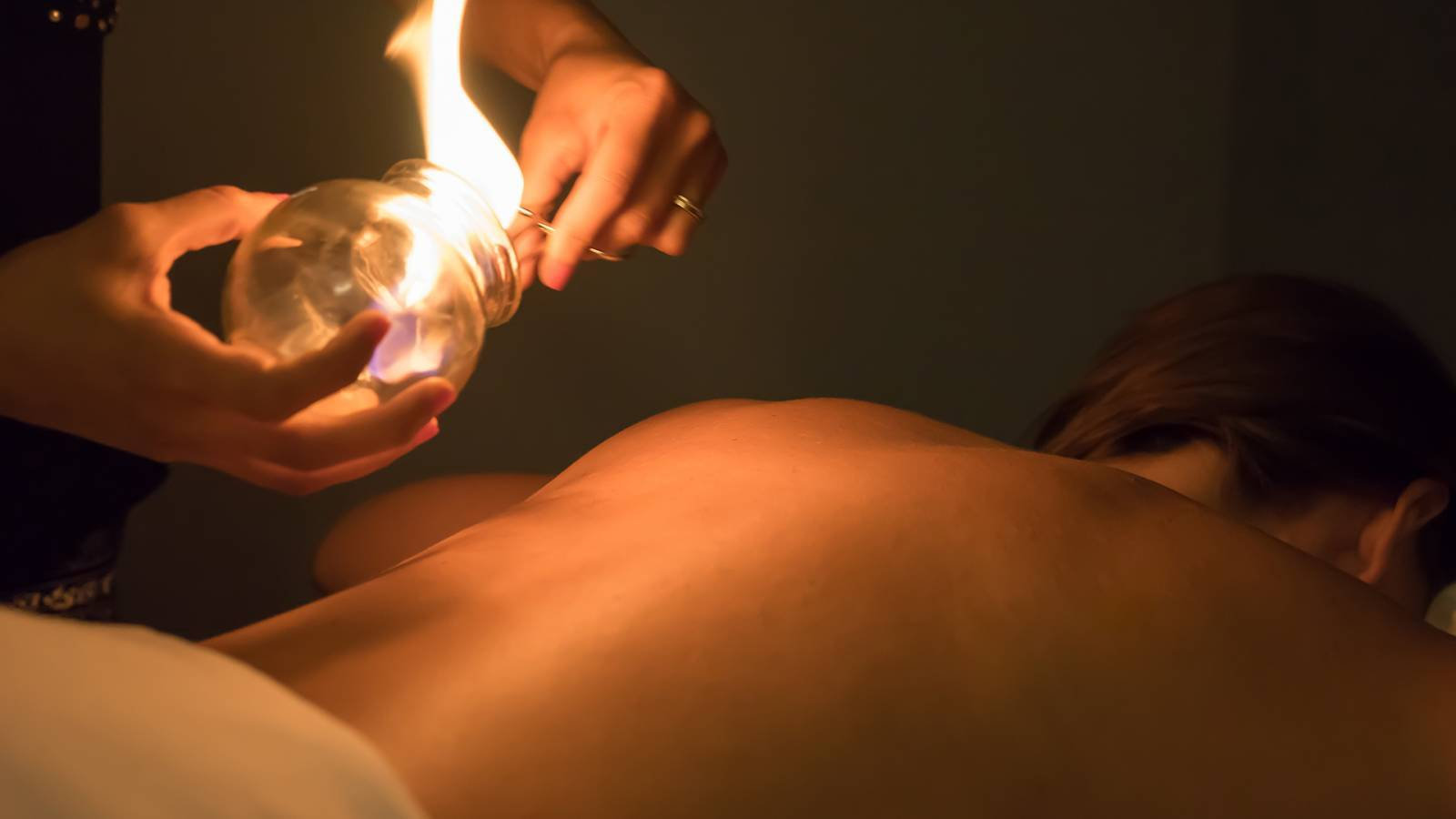 Acupuncture + Fire Cupping with massage