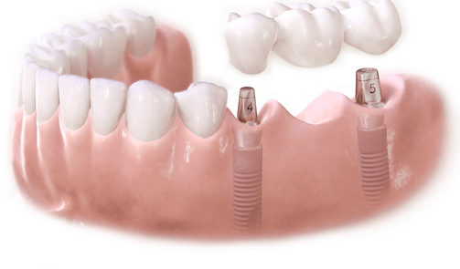 implant bridge.png