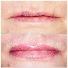 Ful Lip Enlargement