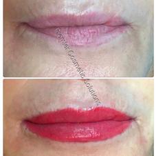 Full Lip Shape Correction