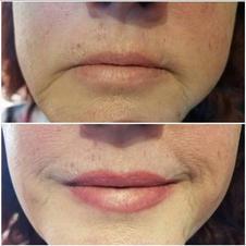 Full Lip Enlargement