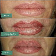 Lip Enlargement