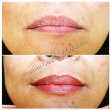 Full Lip Color and Reshape