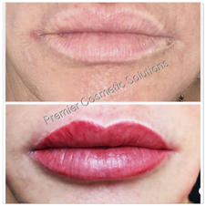 Full Lip Enhancement