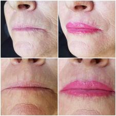 Fashion pink lip enlargment
