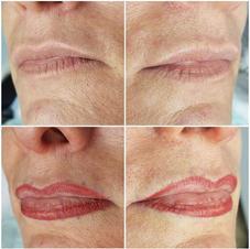 Lip enlargement and contour