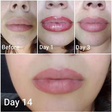 Lip enlargement Progression