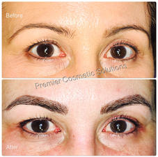 Dark Brown Microbladed Brows
