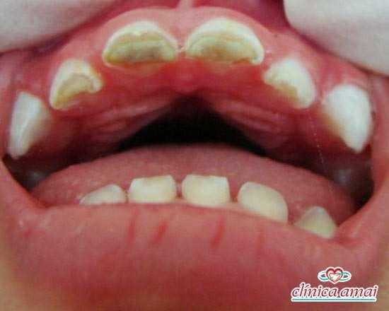 Má formação em dentes de bebê com 1 ano de sete meses, que não conseguia se alimentar.