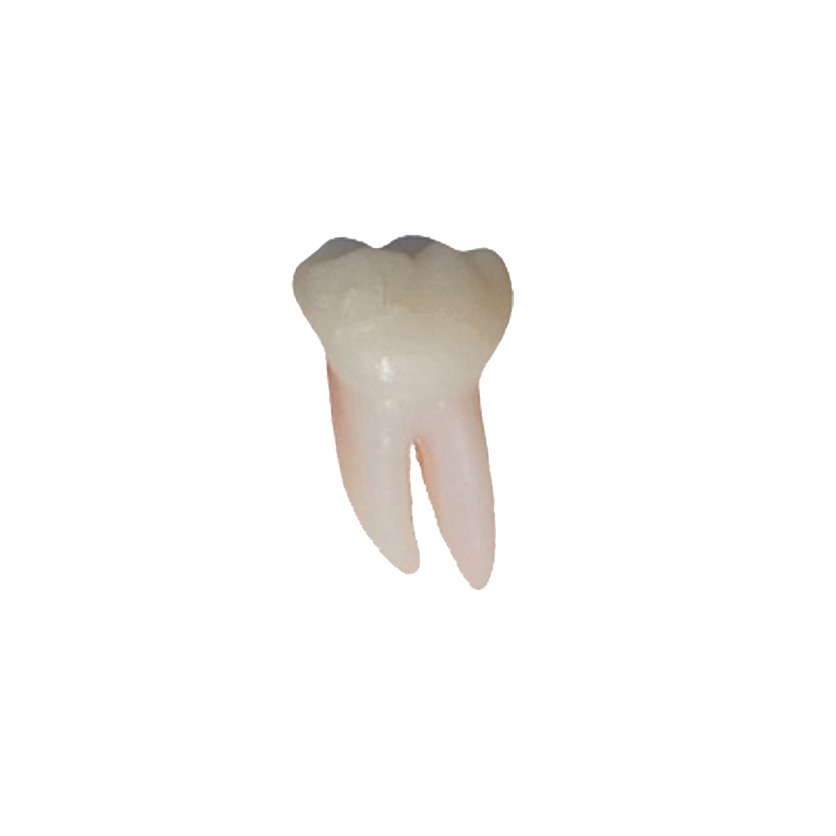 1° molar inferior