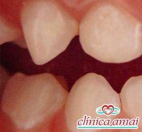 Manchas brancas em dentes de leite