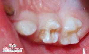 Má formação em dente de bebê com menos de dois anos de idade.