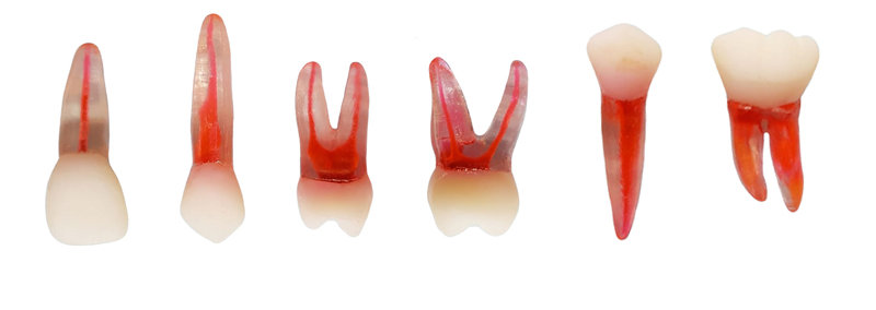 kit 6 dentes permanentes Transparente