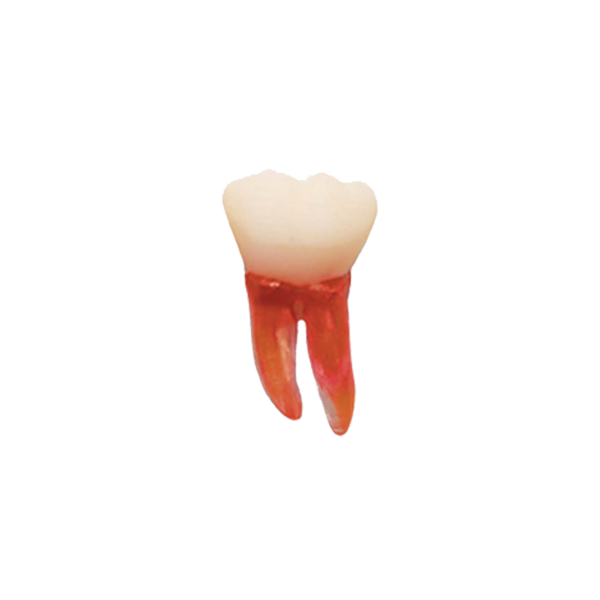 1º Molar Inferior