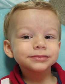 Tratamento de cáries e endodontia em bebê: nota dez para a mãe do Lucas!