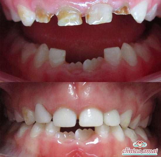 manchas pretas e marrons em dentes de crianças e bebes